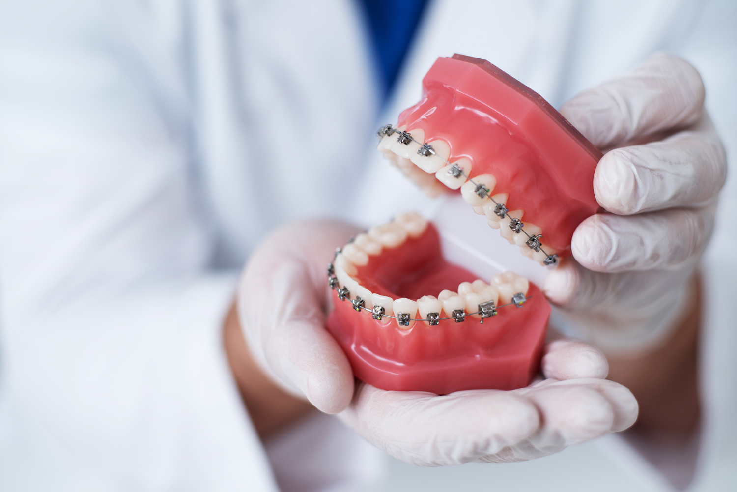 doctor-orthodontist-shows-how-system-braces-teeth-is-arranged